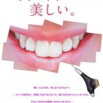 【ポスター】白い歯にしませんか?