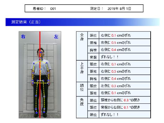 歯科用立ち姿勢判別システム